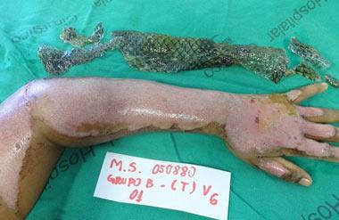 В Бразилии лечат ожоги при помощи рыбьей кожи