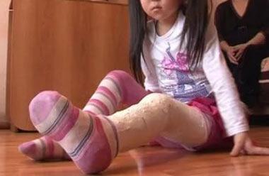 Детский сад посёлка Горноуральский заплатит 15 тысяч за сломанную ногу воспитанницы